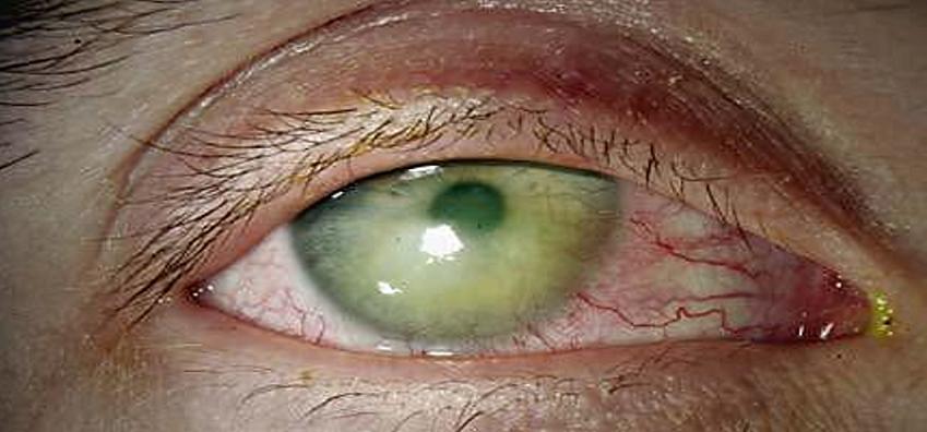 Синдром сухого глаза как осложнение лазерной коррекции